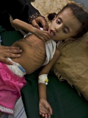 Гипотрофия у детей раннего возраста: фото, симптомы, причины, лечение и профилактика гипотрофии