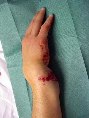 Перелом сустава руки у детей сухожилия суставов рук