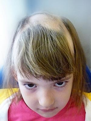 Алопеция у детей - причины, симптомы, диагностика и лечение 87