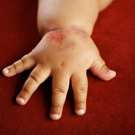 Аллергический дерматит у детей - как и чем лечить. Как выглядит аллергический дерматит у ребенка(фото), симптомы и отзывы родителей