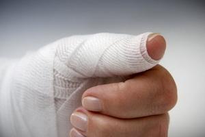 Травматическая ампутация и восстановление целостности тканей
